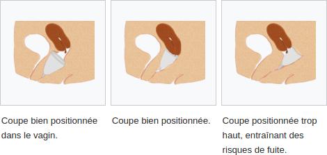 Coupe menstruelle, mode d'emploi
